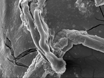 Scanning electron microscope image: Victoria Cooper